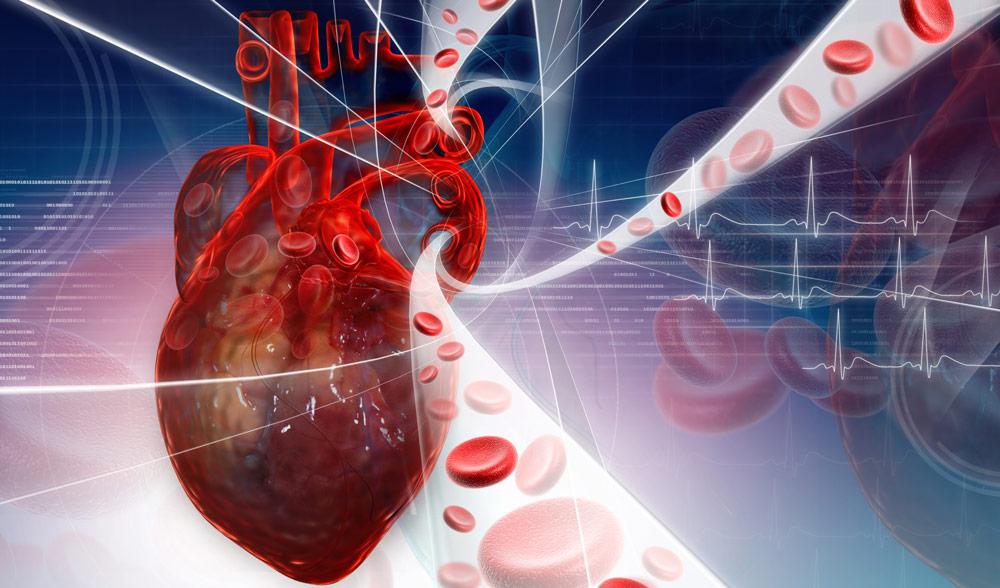 Cholesterol non-HDL