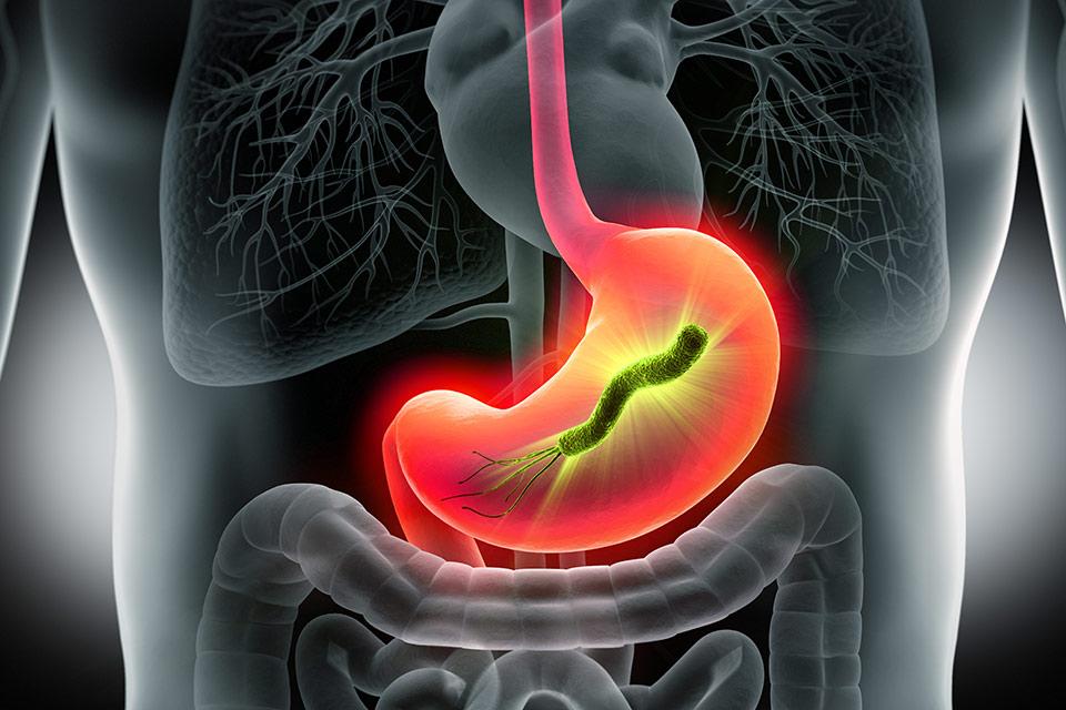 Gdy żołądek daje znać o sobie – laboratoryjna diagnostyka zakażeń Helicobacter pylori