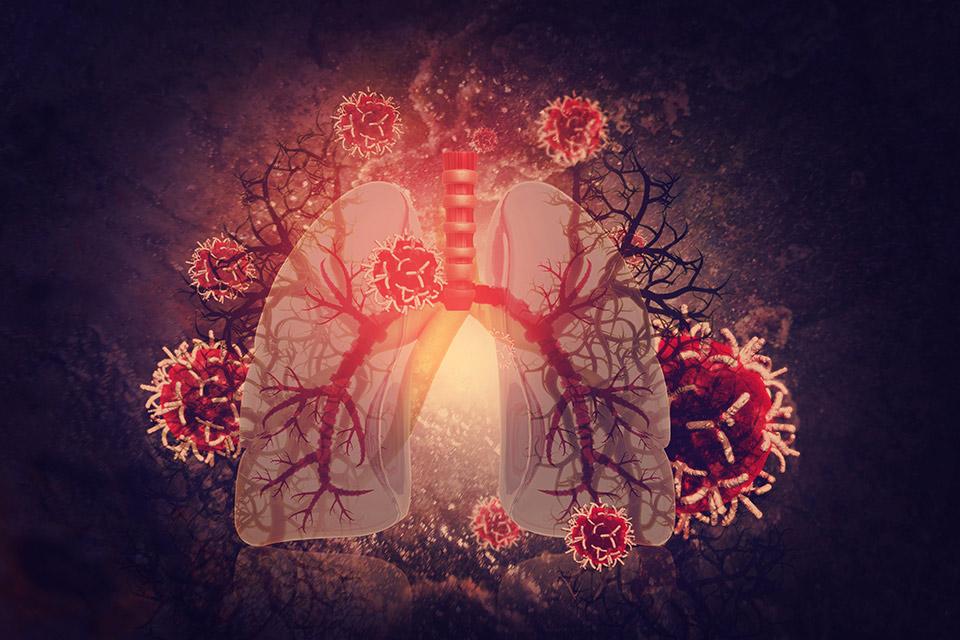Gdy przedłużający się kaszel staje się powodem do niepokoju… Laboratoryjna diagnostyka zakażeń dróg oddechowych bakteriami atypowymi