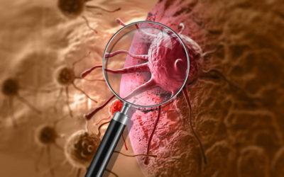 Biochemiczne markery nowotworowe użyteczne w diagnostyce onkologicznej